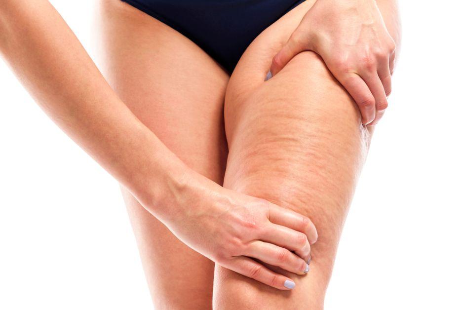 bultos en los muslos de las piernas